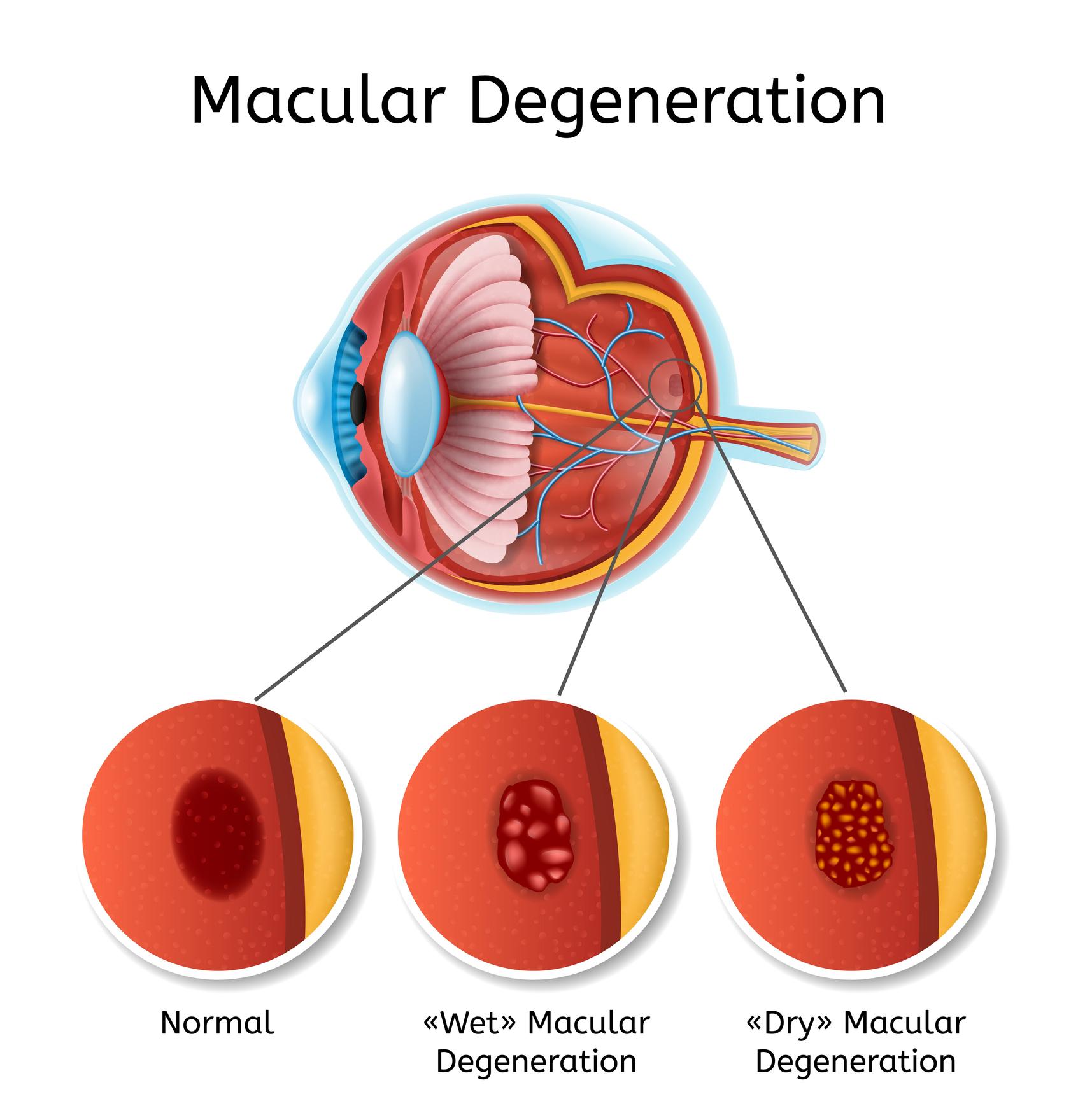 Degenerative myopia myopia Rövidlátás (myopia)