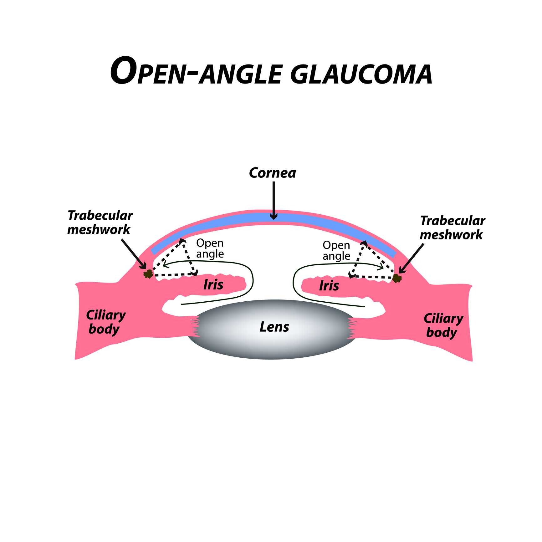 myopia glaucoma